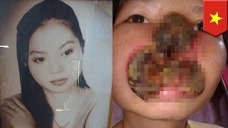 Wajah wanita hancur dimakan jamur - Tomonews