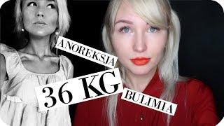 14 LAT Z BULIMIĄ I ANOREKSJĄ - Dużo zdjęć - 36kg na wadze