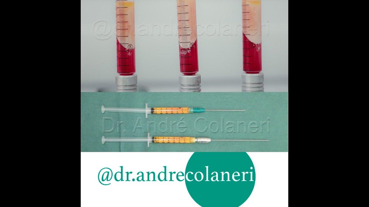 Enxerto de Gordura. Preenchimento. Lipoescultura