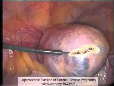 Laparoscopy for Cornual Ectopic Pregnancy - YouTube