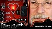 Портативный экг аппарат является незаменимым оборудованием при диагностике сердца. Купить прибор надежного качества от компании нпп.