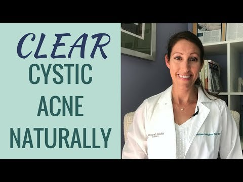 How to Treat and Cure Cystic Acne Naturally | Clinically Proven RESULTS to Get Rid of Acne Fast!!