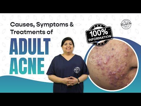 Adult Acne-Symptoms, Causes & Treatment | Dr. Nivedita Dadu Dermatologist Delhi