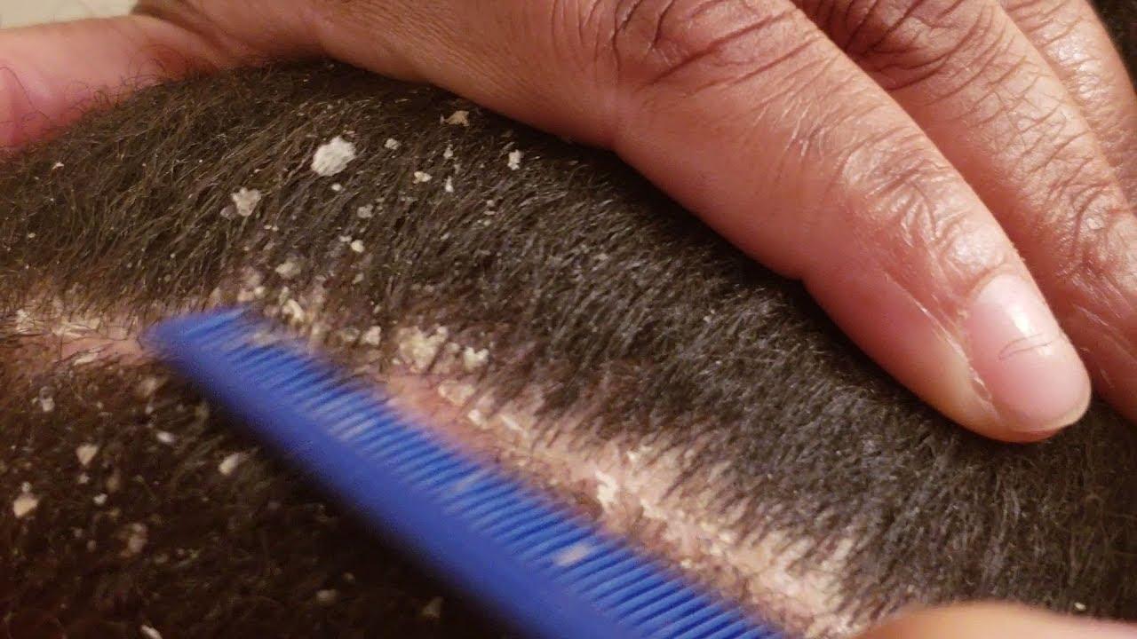 ASMR Dandruff Scratching Hair Combing Flake Removal
