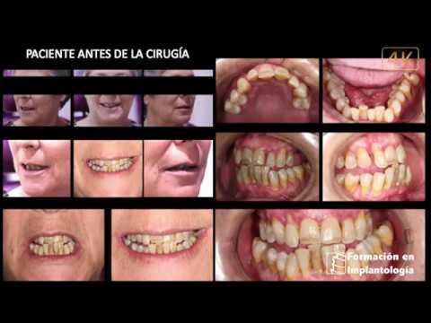 Rehabilitación Implantes Dentales    Dr Ismael Soriano