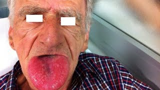 Hereditary #angioedema is characterized by recurrent episodes of swelling that can be life-threateni.