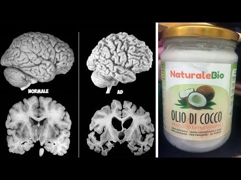 Un Uomo Ha Assunto Olio Di Cocco 2 Volte Al Giorno Per 2 Mesi E Il Suo Cervello È Cambiato!