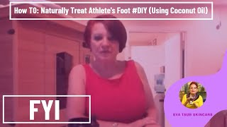 How to Naturally Treat Athletes Foot DIY Using Coconut Oil