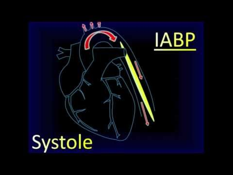 intra aortic balloon pump iabpintroductionthe intraaortic Principles of intra-aortic balloon pump counterpulsation murli krishna mbbs frca ffpmrca kai zacharowski md phd frca intra-aortic balloon pump (iabp) remains the.