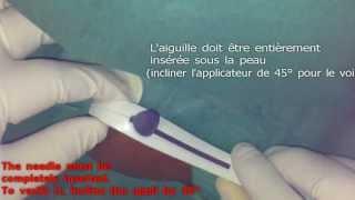 INSERTION sécurisée d'un implant contraceptif ( Nexplanon)