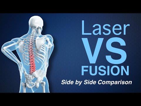 Deuk Laser Disc Repair vs Traditional Spinal Fusion Comparison, Laser versus Fusion