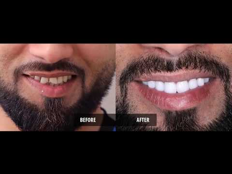 Smile Makeover Review by Mr.Hussein Mohammed Hashem Ali, UAE