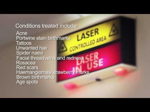 hqdefault - Acne Scar Treatment Available Nhs