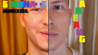 Beard Transformation nach 6 Monaten | Minoxidil | 4K