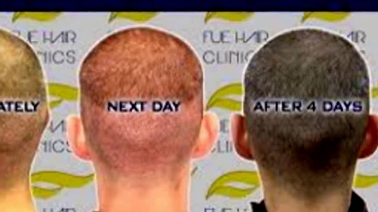 Hair transplant results after 5 months