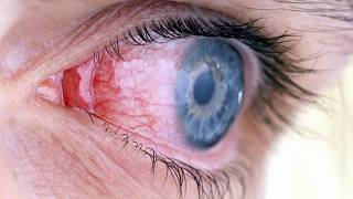 Difference Between Viral and Bacterial Pink Eye