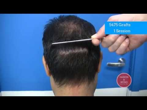 hair transplant results scar focus 01 5474