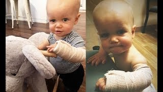 'BE STRONG' BABY J!!! LPBW's Jackson Roloff Has His Arm In A SPLINT After Fall!! [SEE DETAILS VIDEO]