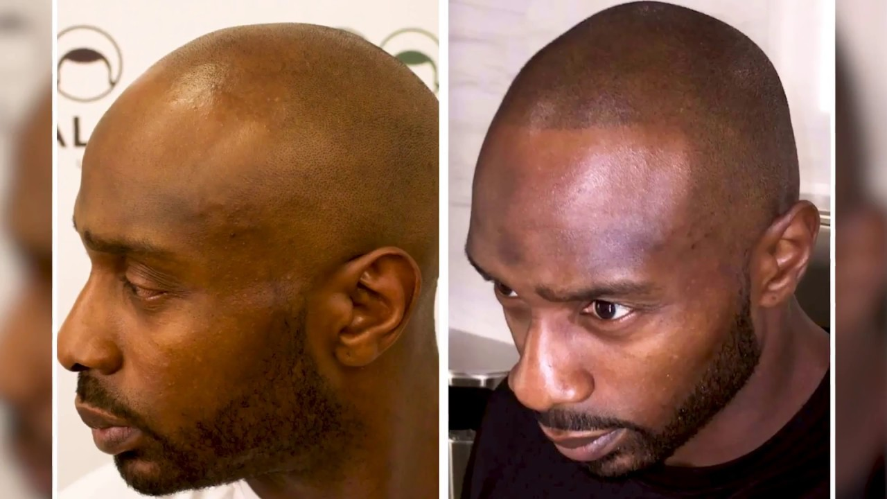 e600a13f32af3 A Subtle Hair Tattoo Treatment is Giving Bald Men  New Life  - YouTube