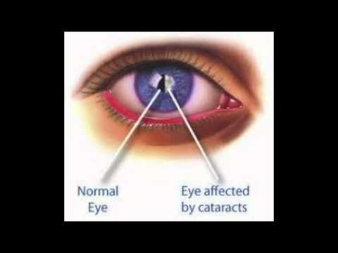 Cataract Surgery Recovery Youtube