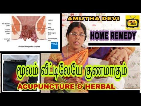 மூலம் உடனே குணமாகும் வீட்டு வைத்தியம் | piles Acupuncture points & herbal home treatment | Amutha