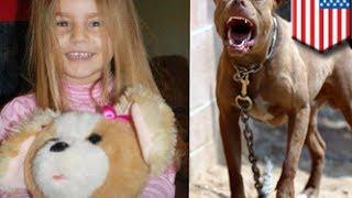 فتاة ينهشها كلب بيتبول يبلغ ضعفي حجمها ومن ثم تموت
