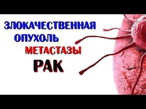 Злокачественная опухоль рак. Метастазы