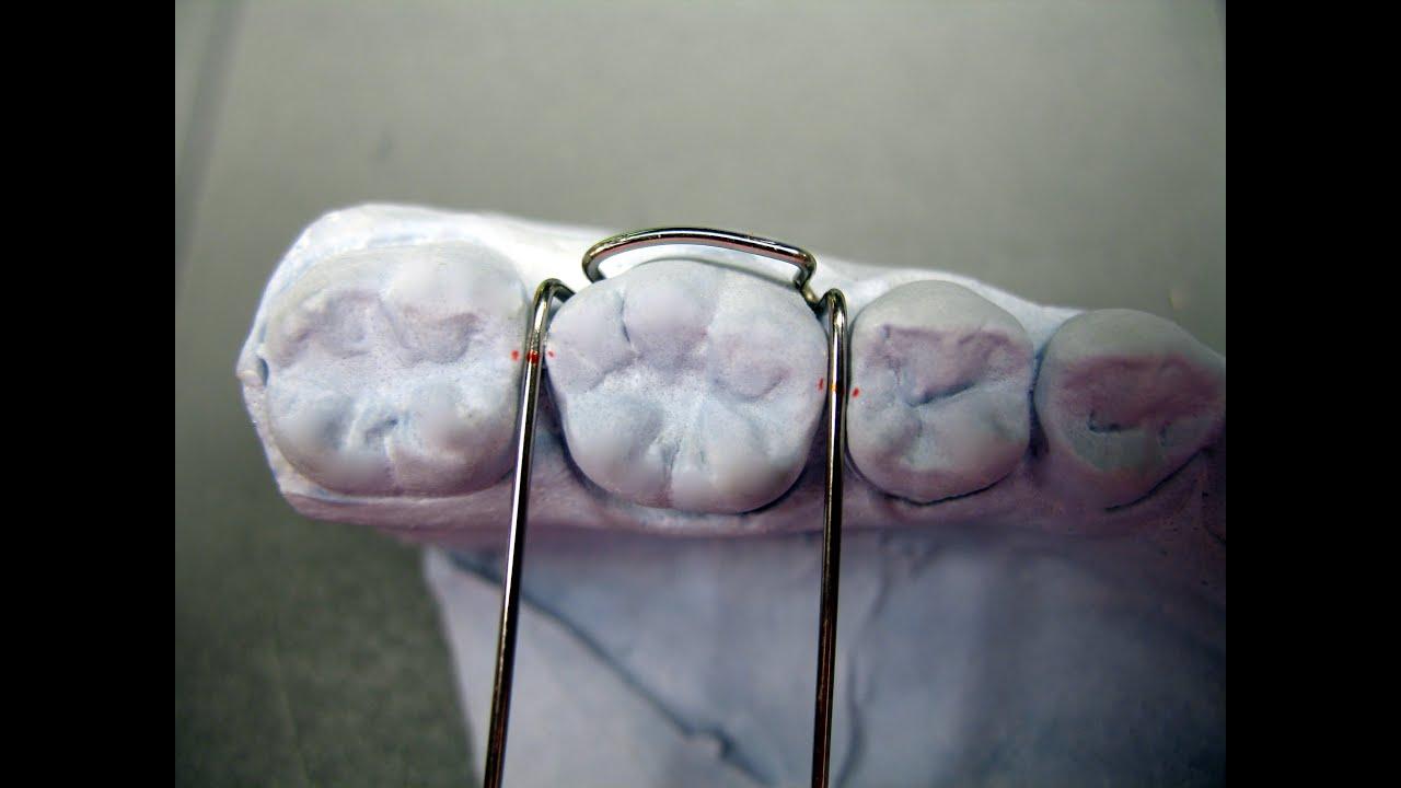 Adamsklammer, Adams clasp, KFO, Kieferorthopädie, Orthodontics ...