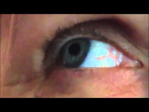 Love Spelled in Eyeball Blood Vessel
