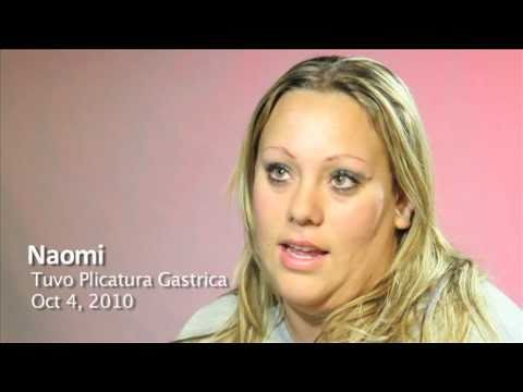 OCC: Interview with a Gastric Plication Patient (Spanish)