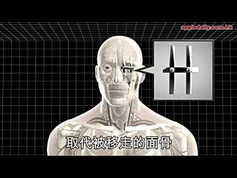 英男割腫瘤留駭人洞口 新技術助重生 3D打印半邊人造面皮 - 20130402 - 蘋果日報