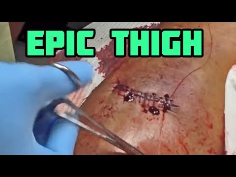 Thigh Operation - Epic Journey to Recovery
