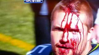 Owen Schmitt, fullback for the Seattle Seahawks, voluntarily busts his head open.