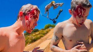 Splitting My Head Open, Then Super Glueing It (RAW FULL VIDEO)