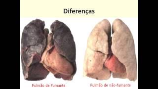 Circulatório aparelho do e doenças doenças