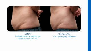 La Jolla CoolSculpting - Slideshow Before and After Thumbnail
