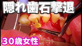 tartar removal 【30歳女性 】隠れ歯石撃退!歯茎から湧き出る歯石たち・・・😱
