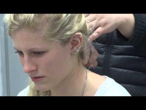 Acupuncture Shoulder Pain -- TCM College of Shanghai Cl