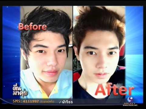 ศัลยกรรมปากเปลี่ยนชีวิต