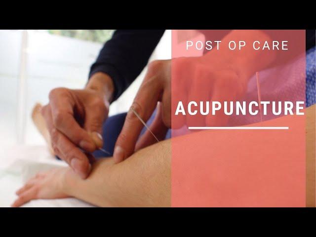 Acupuncture for FFS patients | Facialteam Comprehensive Care