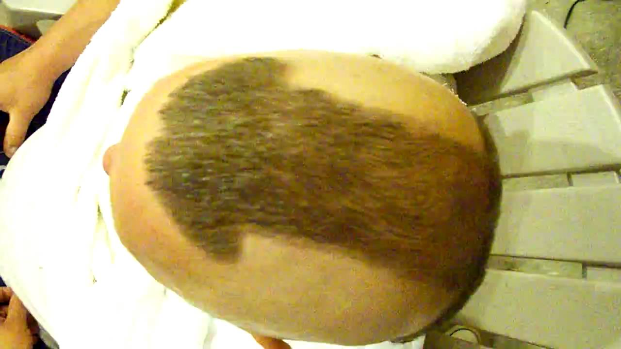 Hair On Dick
