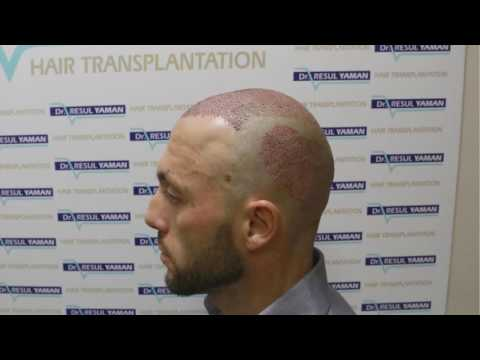 Dr Resul Yaman Hair Clinic - Patient Resut