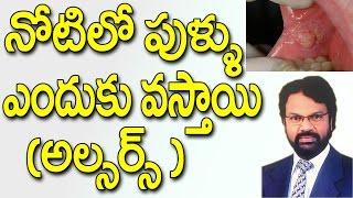 నోటిలో పుళ్ళు ఎందుకు వస్తాయి || Mouth Ulcer ||  Telugu Dental Tips in Telugu || Dr Raos Dental