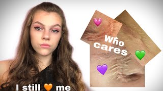 HOW TO LOVE YOURSELF WITH SCARS ?! | My Scar Story