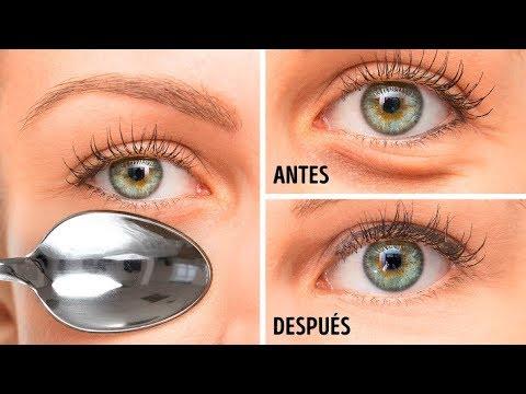 De los ojeras paranasales ojos debajo senos y