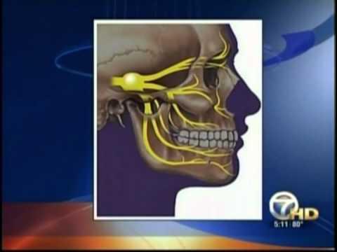 Trigeminal Neuralgia | Symptoms & Causes | Dr. Komal Prasad C.