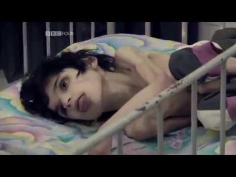 Bulgária Elhagyott Gyermekei 1.  rész letöltés