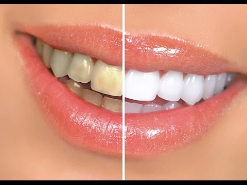 how-to-whiten-teeth-at-home-with-led-light-|-white-with-style