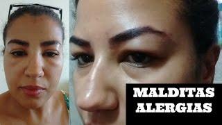 Rosto de reação tratamento inchado alérgica