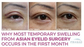 Most Temporary Swelling from Asian Eyelid Surgery is Within the First Month